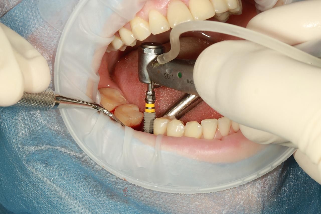 Implant dentaire : comment est déterminé son prix ?