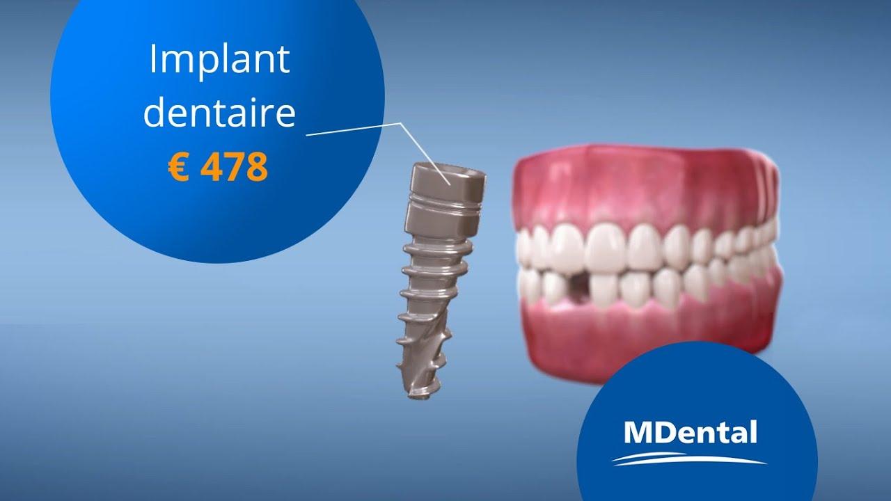 Centre dentaire : quels sont les avantages offerts par ce type d'institution ?